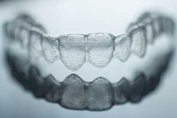 NW Calgary Dentist | 16 Avenue Dental | Invisalign Braces