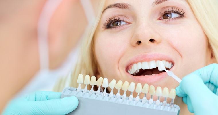 Porcelain veneer being held up to a smiling woman's teeth